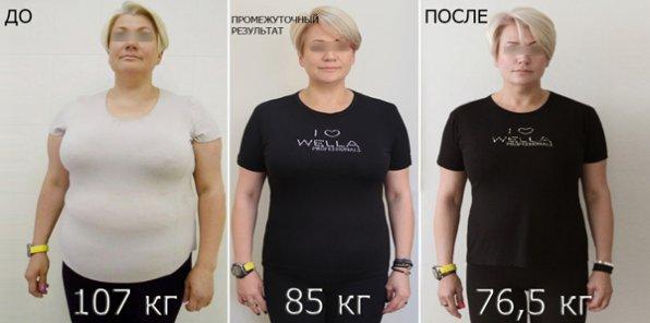 -50% на коррекцию фигуры и веса в клинике «АИДА»