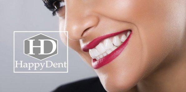 Скидки до 90% на услуги стоматологии «Хэппи Дент»