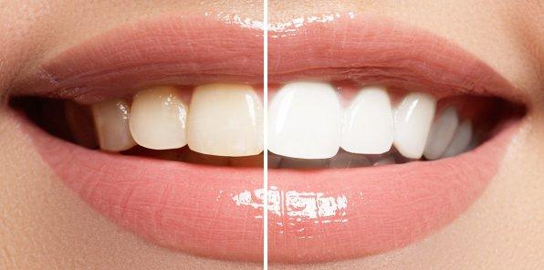 Скидки до 80% на отбеливание зубов