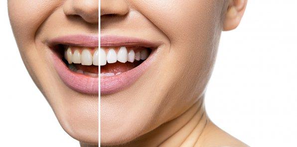 Скидки до 50% на отбеливание зубов