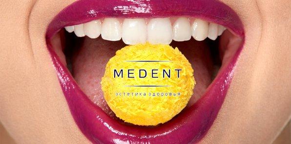 Скидки до 70% на имплантацию и протезирование в стоматологии «Медент»