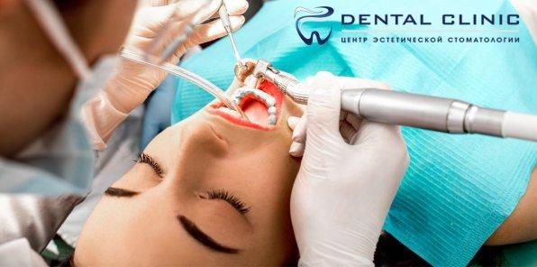 Скидки до 70% в стоматологии Dental Clinic