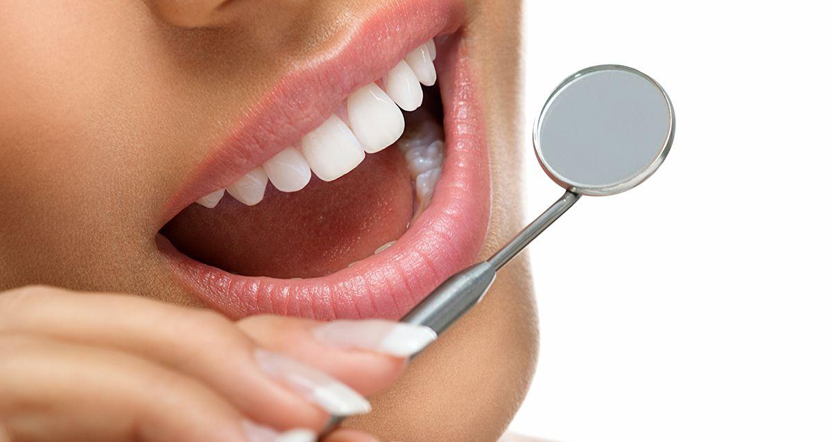 Отбеливание зубов: какое выбрать