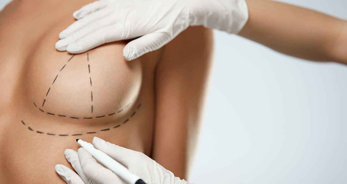 Мифы о пластике груди