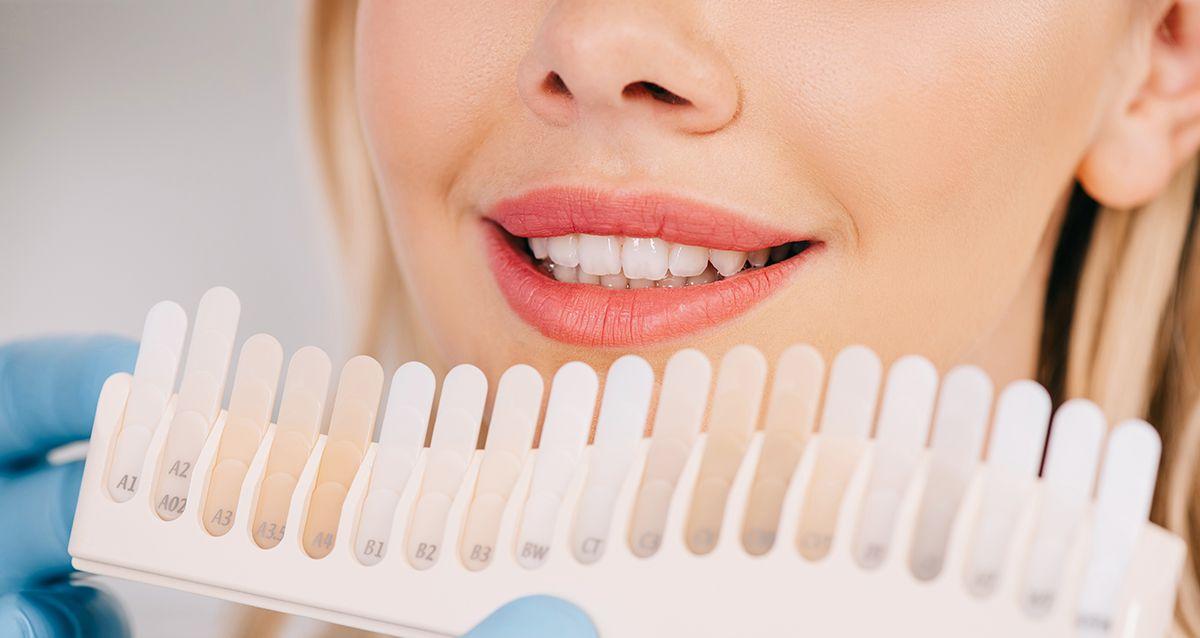3 способа сделать зубы белыми, доступные каждому