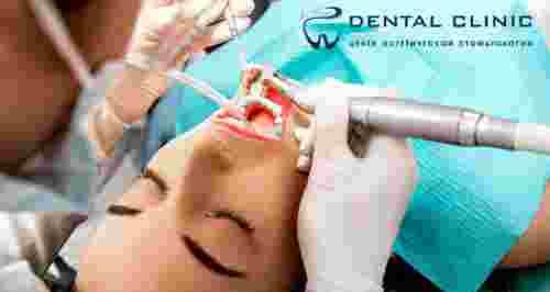 Скидки до 70% в стоматологии Dental Clinic на Оптиков