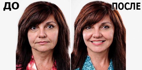 Пластика без операции! Скидка 50% на ультразвуковую подтяжку лица на аппарате для SMAS-лифтинга Doublo