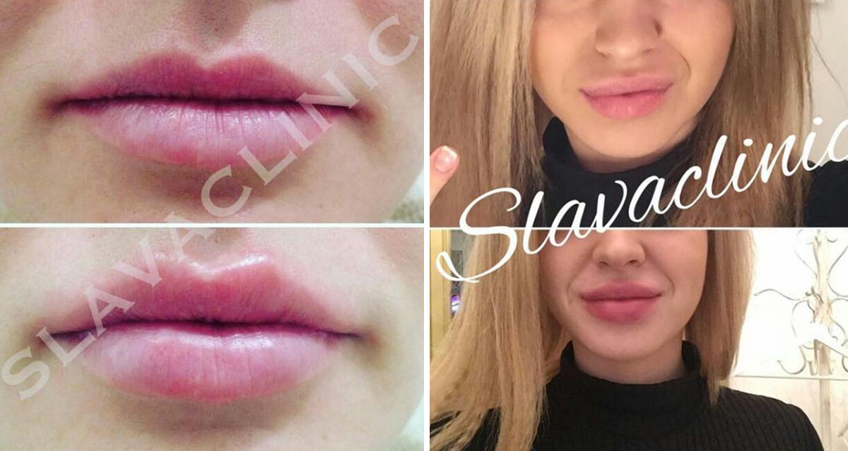 увеличение губ в клинике слава