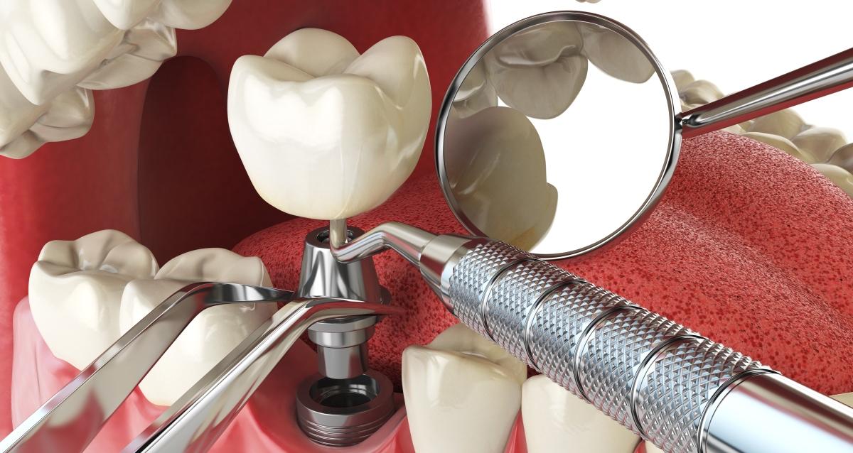 Американские зубные импланты
