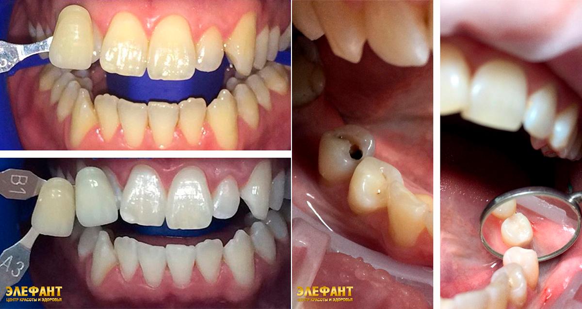 стоматология в центре «Элефант»
