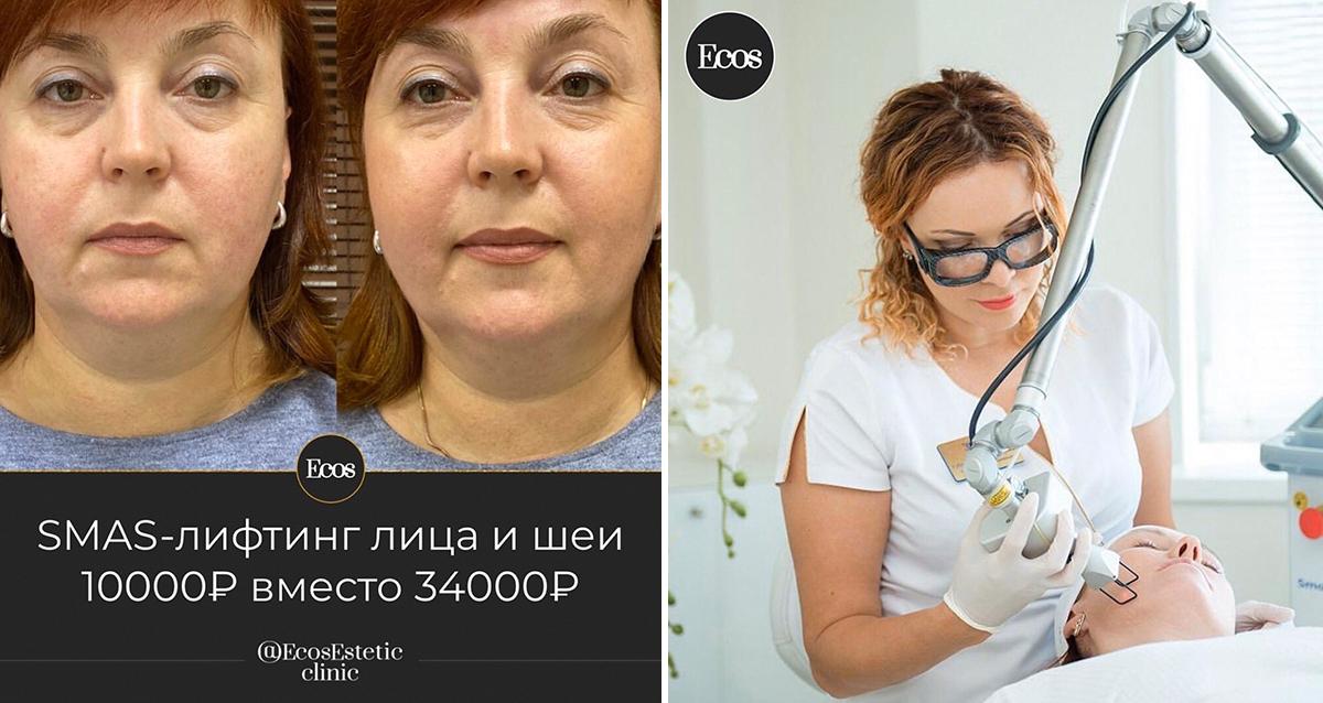 клиника экос эстетик