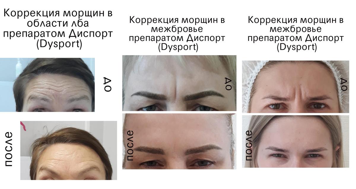 Клиника экспертной косметологии «Волна»
